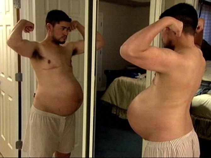Trudni muškarac rodio je tri bebe i sada radi histerektomiju kako bi završio promenu pola