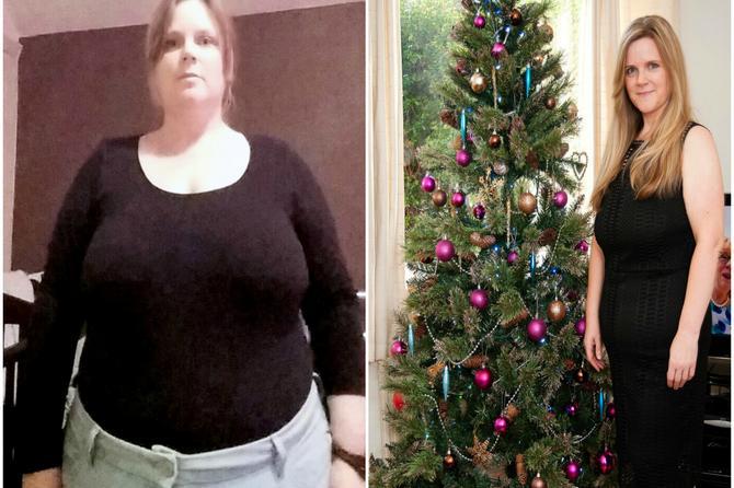 Imala je stomak kao Deda Mraz. Smršala je 38 kilograma i sad izgleda kao BOMBA!