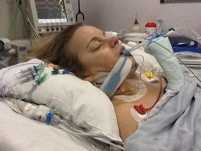 Visoka cena lepote: Preživela 8 moždanih udara i infarkt posle uklanjanja podbratka