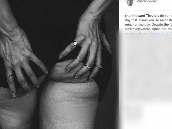 Manekenka svim ženama poručila da se ne stide onoga što svi imaju – CELULITA