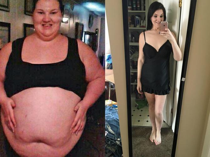 Da, u pitanju je ista žena! Smršala je 111 kilograma, ali ispod haljine krije STRAŠNU TAJNU