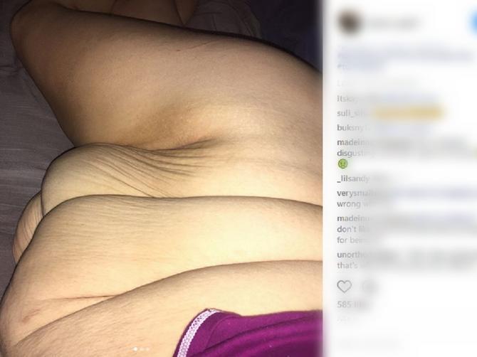 Ona ima samo 24 godine: Smršala je 95 kilograma, ali sada njena noćna mora i dalje traje!