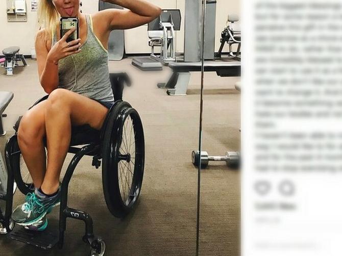 Ostala je paralizovana posle nesreće, pa prohodala, a sada joj preti amputacija noge iz neverovatnog razloga