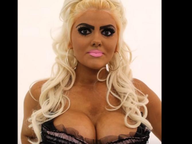 Svi su joj se rugali, a ona je mislila da liči na Barbiku: Transformacija je pokazala kako ZAISTA IZGLEDA