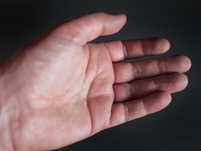 Ako na dlanu imate slovo X, onda ste među retkima: Ovaj znak najavljuje NEŠTO SASVIM POSEBNO!
