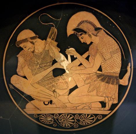 Patroklo vida rane Ahilu, oko 500. pre n.e.