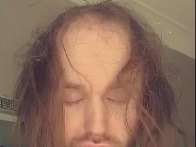 Opalo mu je toliko kose da od blama nije imao seks 3 godine: Danas izgleda OVAKO i ne može da se odbrani od udvarača!