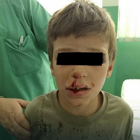 Dečaku je pas unakazio lice, a osim bolova ima i psihičke traume
