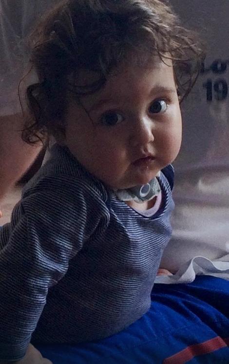Devojčica hitno mora na novu operaciju u Francuskoj koja košta 122.000 evra