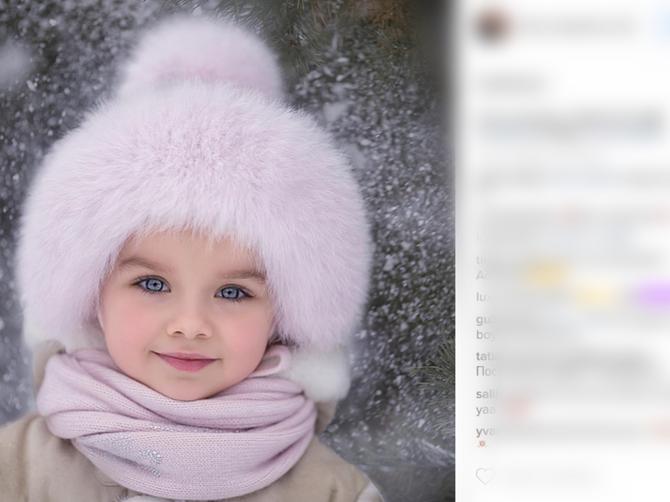 Ovako je izgledala pre samo dva meseca: Najlepša devojčica na svetu se TRANSFORMISALA