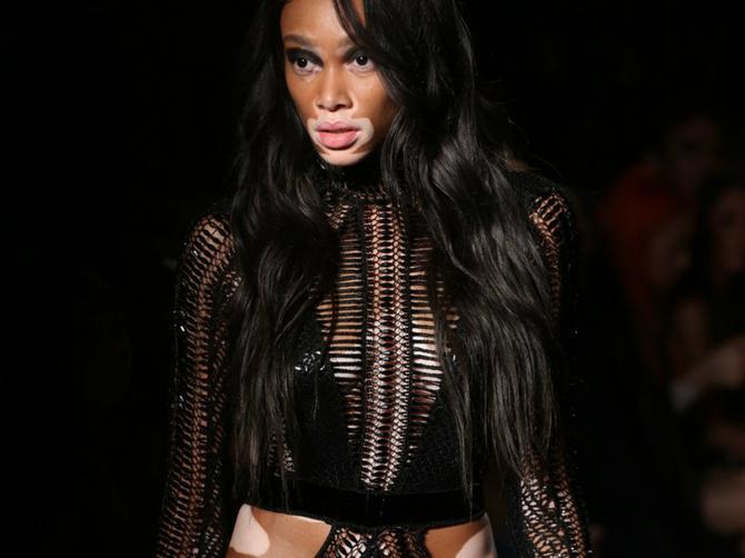 Svaka čast: Manekenka drugačija od svih i hrabrija od svih nezaustavljivo ide ka modnom vrhu!
