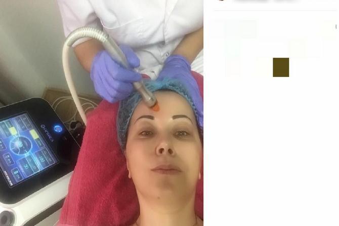 Naša voditeljka otišla na mezoterapiju: Mnoge žene bi sakrile OVO, ona je želi!