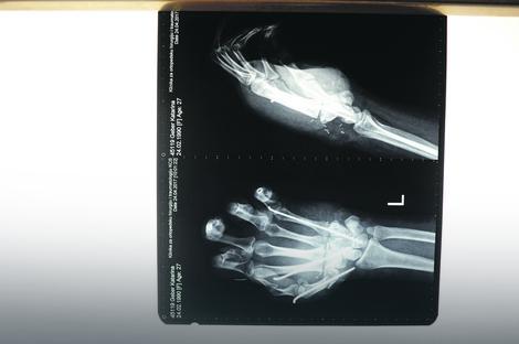 Posebnim iglama lekari su fiksirali kosti i krenuli na ušivanje tetiva. Za svaki prst ušili su najmanje dve tetive, ukupno više od 10