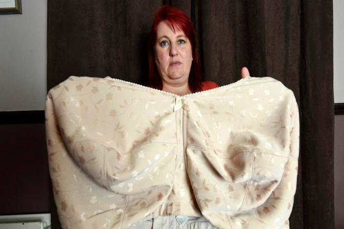 Ogromna patnja! Ovako izgleda život žene čije su grudi teške 20 KILOGRAMA!