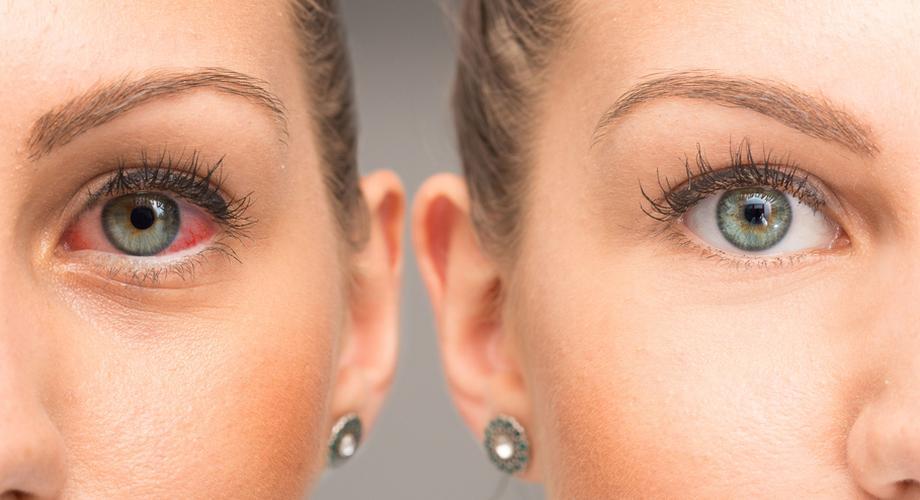 Száraz szemek  természetes módszerek a kellemetlen tünetek ellen c4e3dddb1f
