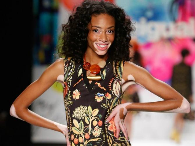 Manekenka sa vitiligom zablistala na Nedelji mode u Njujorku: Ponosna sam na svoju kožu!