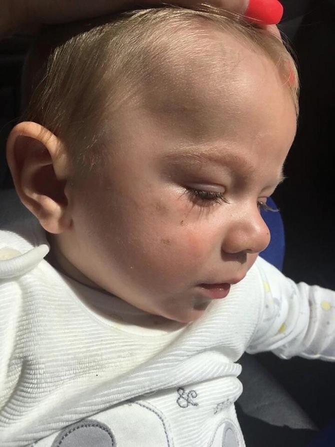 Majka apeluje na sve koje koriste nosiljke: Tek što sam uzela nosiljku u ruke, ručka je pukla, i umalo sam ostala bez deteta!