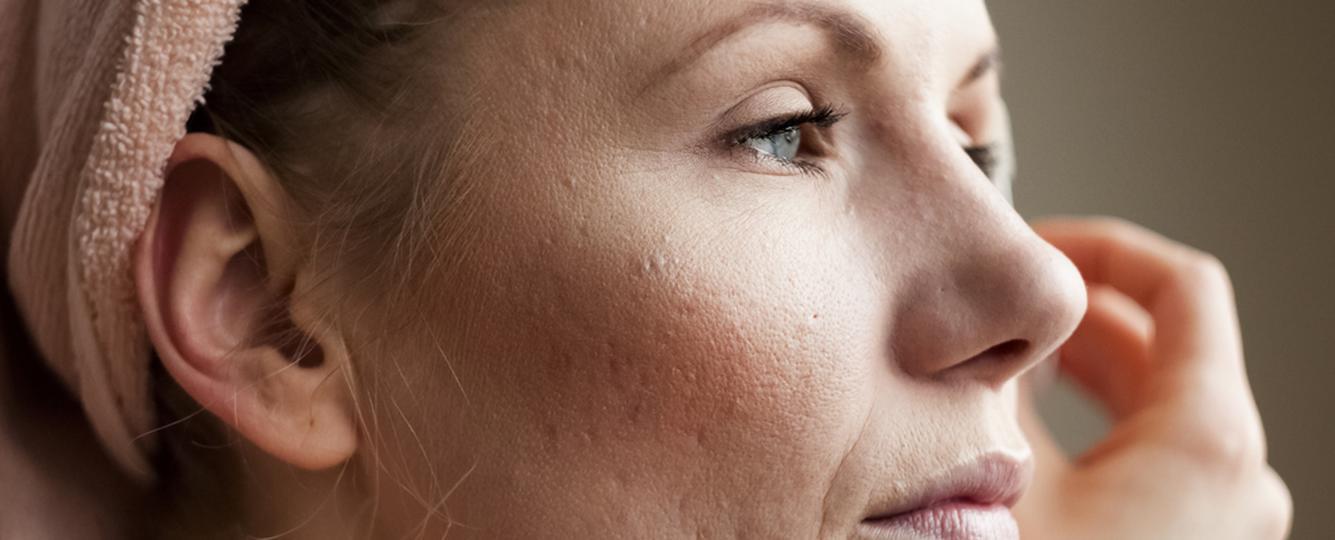Trądzik, ciąża, choroby skóry - jak pozbyć się niechcianych blizn?