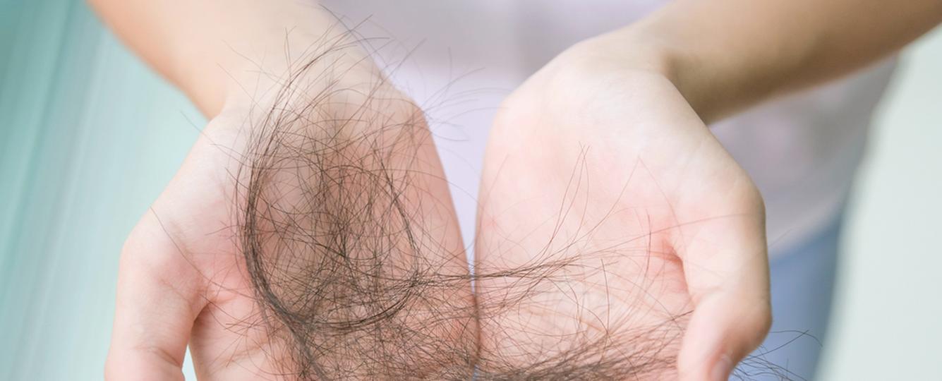 Pięć powodów, dla których twoje włosy wypadają garściami