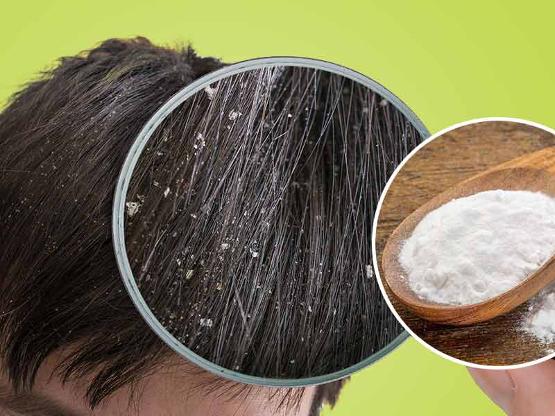 How to remove dandruff with baking soda [ARTICLE] - Pulse Ghana