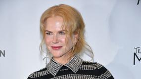 Nicole Kidman znowu przesadziła z medycyną estetyczną?