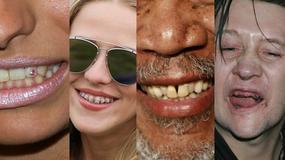 Ich zęby nie są doskonałe. Są też polskie gwiazdy