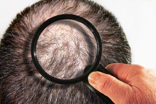 Muškarci su skloniji proređivanju kose