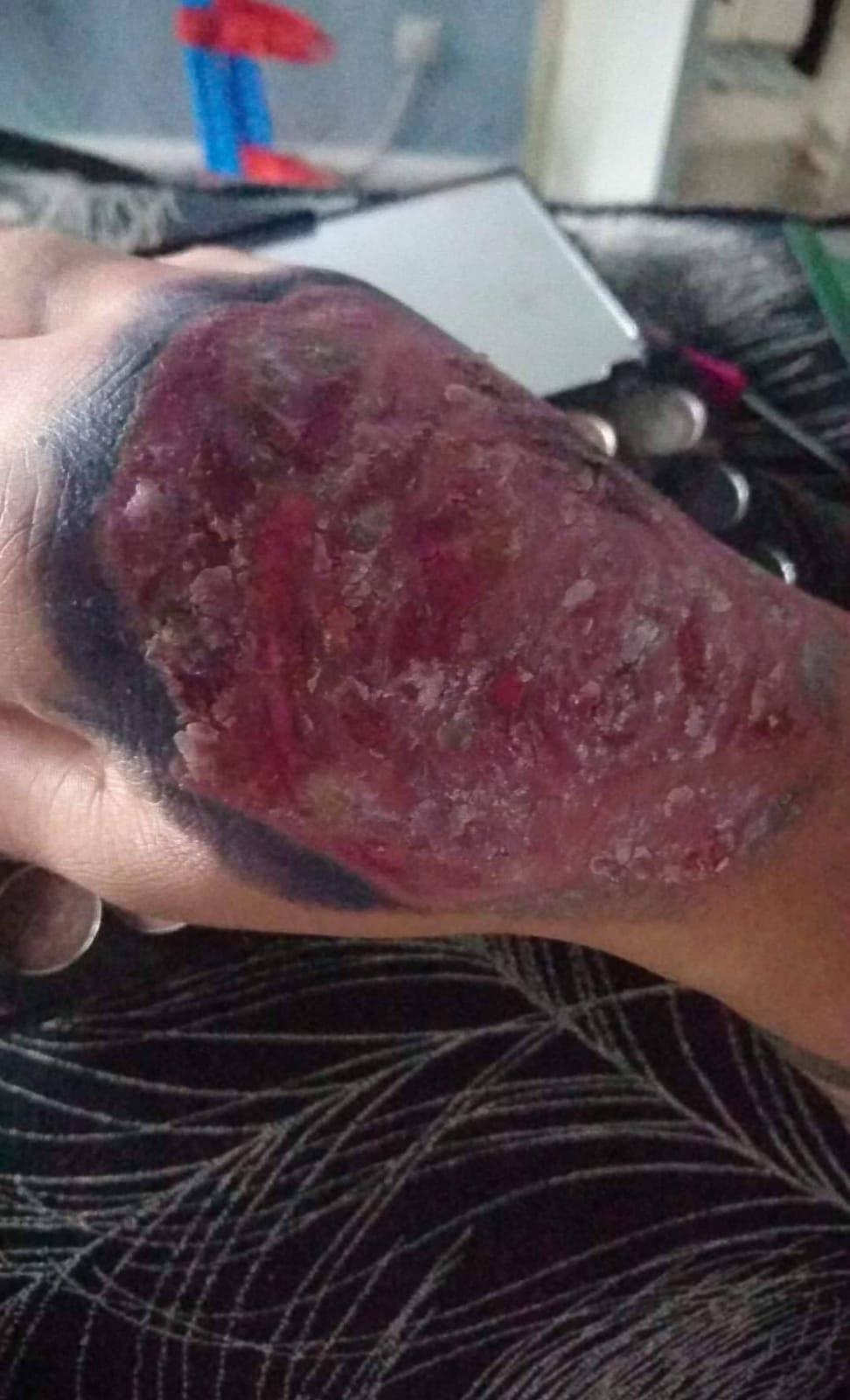 Wielka Brytania Zrobiła Tatuaż I Dostała Uczulenia Ból