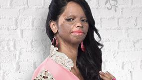 Modelka polana kwasem została bohaterką kampanii reklamowej