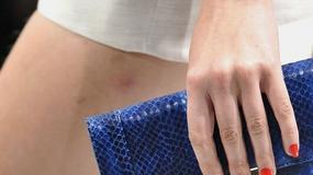 Trendy: kolorowe paznokcie