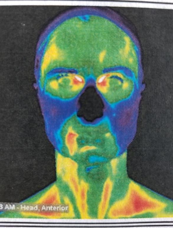 Snimak sa termografije