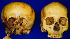 Czym jest czaszka Gwiezdnego Dziecka?
