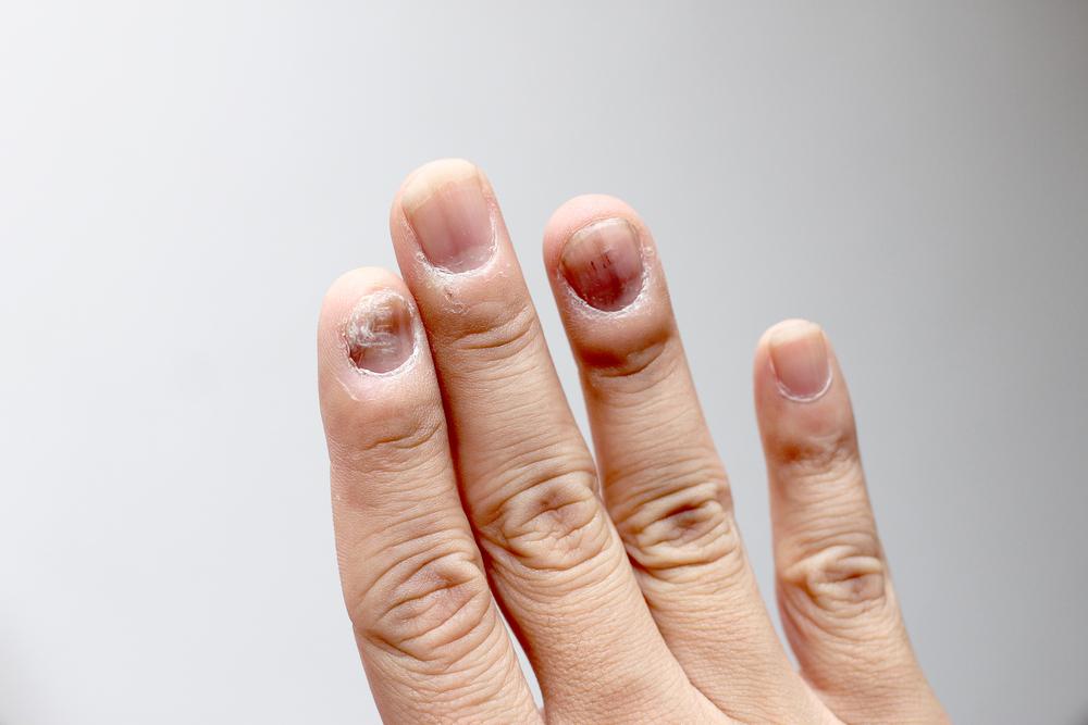 4bf0c9bcf19b83 Kolor paznokci a stan zdrowia człowieka - Zdrowie
