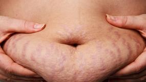 Rozstępy - zmora kobiet w ciąży