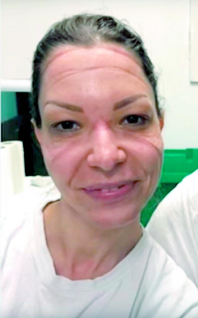 Dr Milena Stojanović:  ovako izgleda lice lekara posle sati i sati nošenja maske