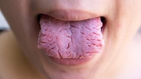 Co język mówi o naszym zdrowiu? Uważaj na te choroby!