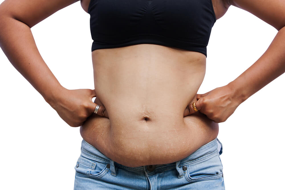959e23117b Fitness How to deal with sagging skin after weight lost - Pulse Kenya