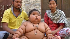 8-miesięczna dziewczynka z Indii ma ogromną nadwagę