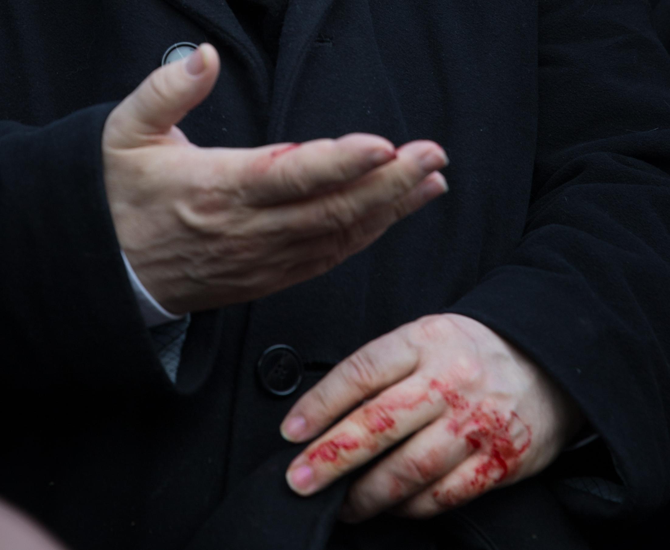 Prezes Jarosław Kaczyński zranił się w rękę