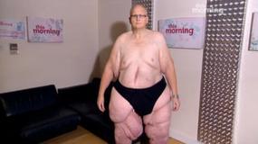 Paul Mason schudł 295 kg i zmaga się z poważnymi skutkami odchudzania