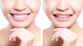 Produkty, które najbardziej przebarwiają zęby