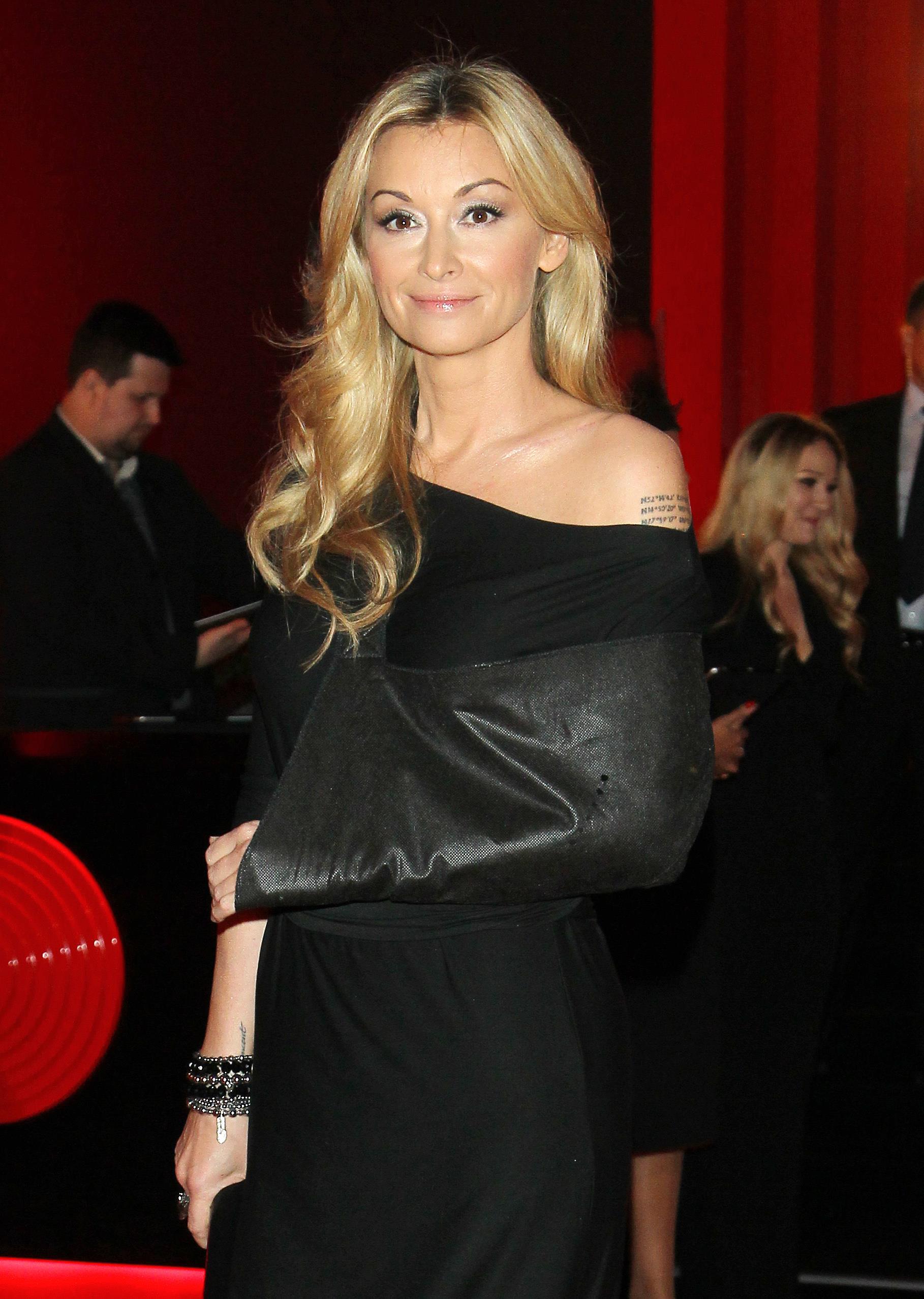 Martyna Wojciechowska Z Blizną Po Wypadku Na Balu Fundacji