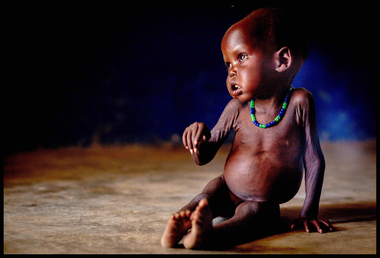 7dfcd025012693 Głód na świecie. Które kraje najbardziej dotknięte są głodem? Raport -  Świat - Newsweek.pl