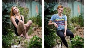 Fotografie przed i po zabiegu zmiany płci