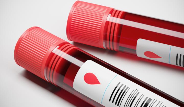 Badania krwi w kierunku anemii