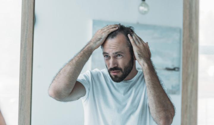 Przeszczep komórek macierzystych włosów