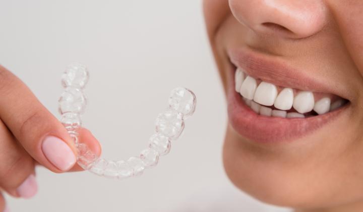 Szyna relaksacyjna – nakładka stomatologiczna