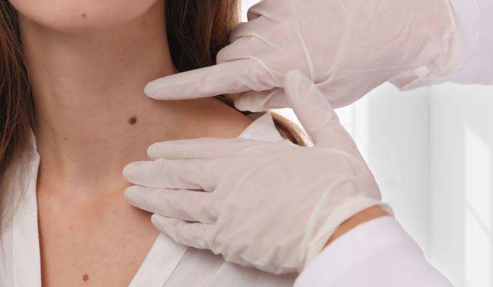 Konsultacja u dermatologa