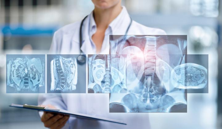 Rezonans magnetyczny miednicy kostnej