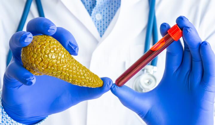 Kontrola pracy trzustki - badania krwi